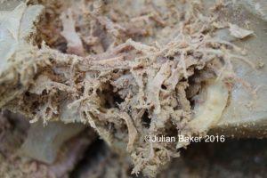liver-tree