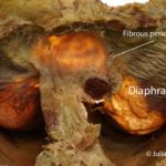 The Heart and Diaphragm